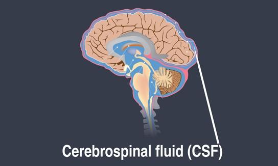 Cerebrospinal fluid - brain